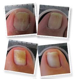ongles-avant-apres-traitement-mycose